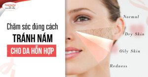 Nám da mặt vùng má và cách hỗ trợ điều trị