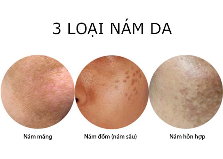 Các loại nám da mặt vùng má